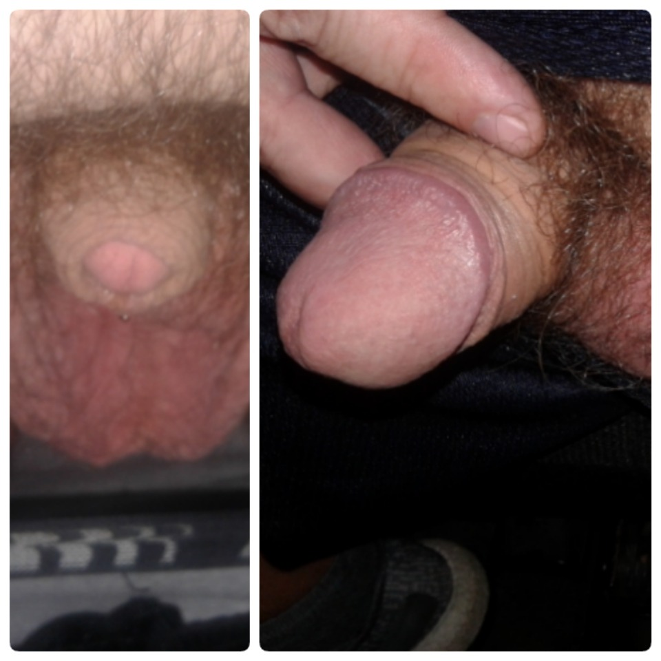 Clitoris Dick: Soft vs Hard